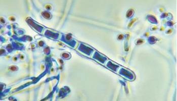 Как рассмотреть грибок ногтей под микроскопом?